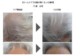 白髪改善事例1